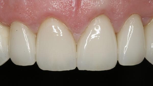 After Dental Veneers in Twickenham