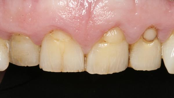 Before Dental Veneers in Twickenham