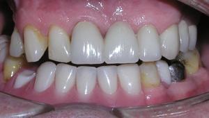 After Dental Bridges in Twickenham