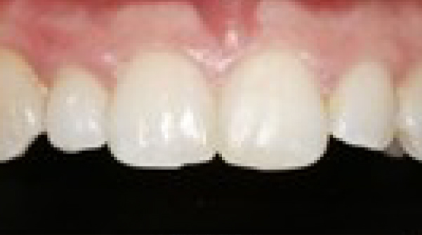 After Inman Aligner treatment in Twickenham