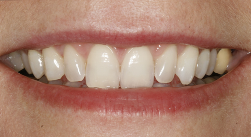 After teeth whitening Twickenham