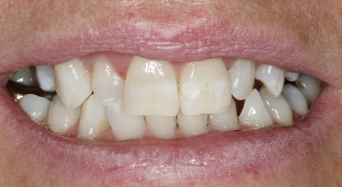 After whitening in Twickenham
