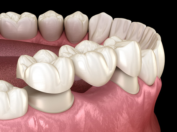 illustration-of-classic-dental-bridge