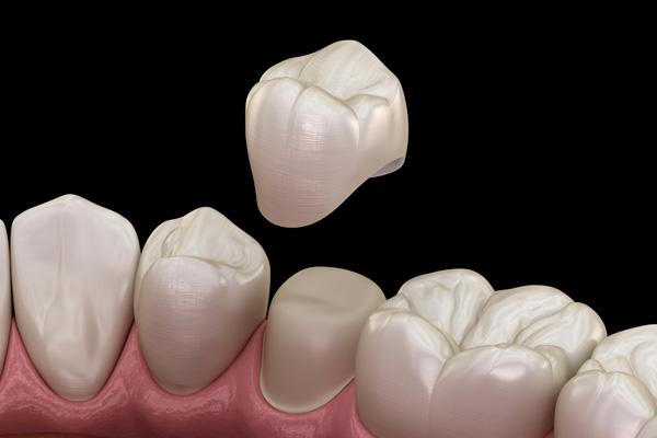 illustration-of-dental-crown