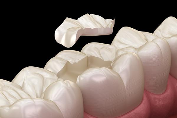 illustration-of-dental-inlays