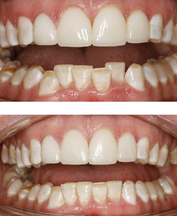 Before and after Inman Aligners