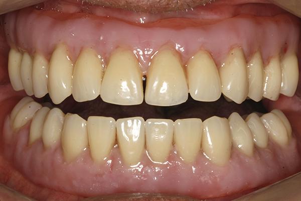 After Dentures in Twickenham