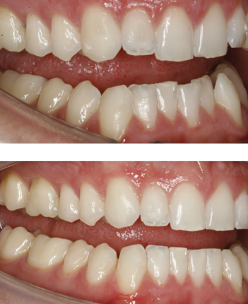 Before & after Invisalign in Twickenham