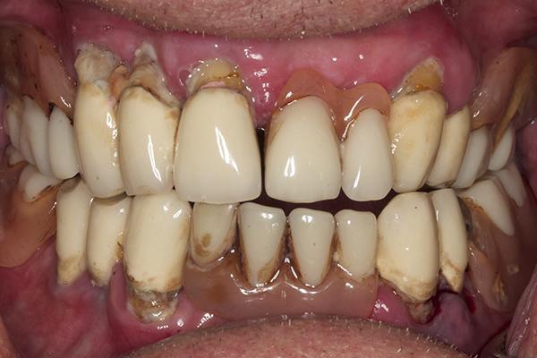 Before Dentures in Twickenham
