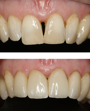 Dental Veneers case study in Twickenham