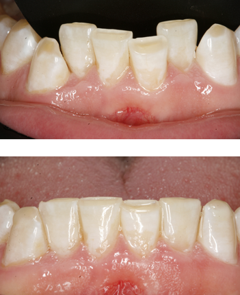 Before & after Inman aligners in Twickenham