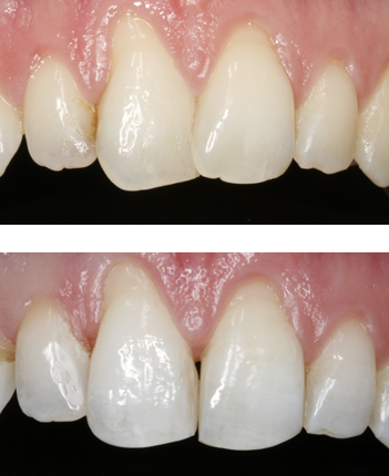 Before and after Inman aligner Mrs Parkin